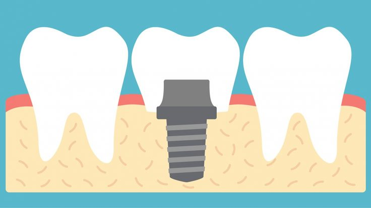 Your First Dental Implant Procedure: What to Expect
