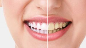 Teeth Whitening (Bleaching)